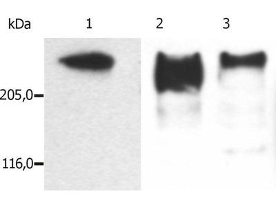 anti-MAP2 (METAP2) antibody