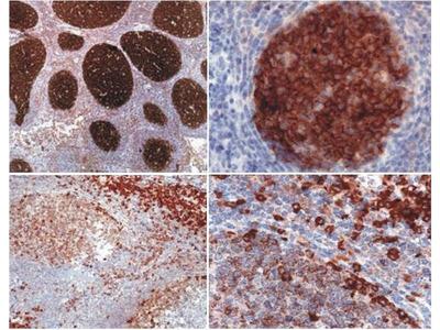 anti-PAG1 antibody