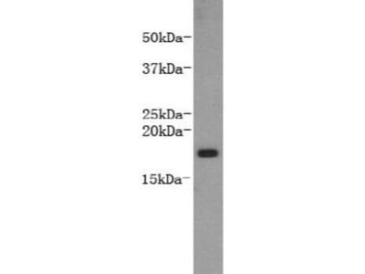 anti-LTA antibody