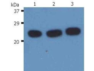 anti-NRAS (HRAS) antibody