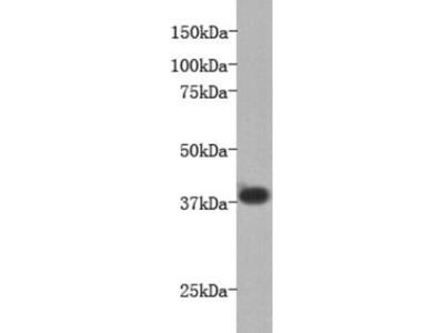 anti-BUD31 antibody