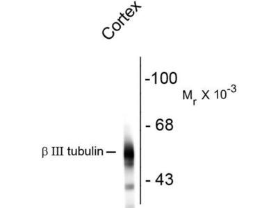 anti-TUBB3 (beta tubulin3) antibody