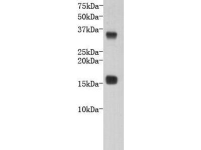 anti-TTR (Transthyretin) antibody