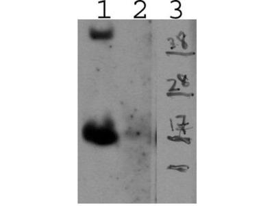 anti-interleukin 15 Antibody