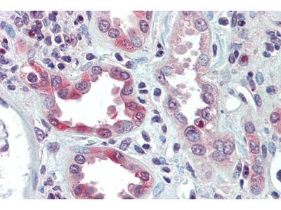 anti-Snail (SNAI1) antibody