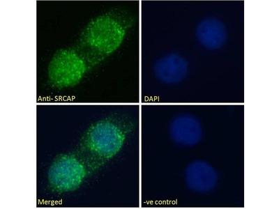 anti-SRCAP antibody