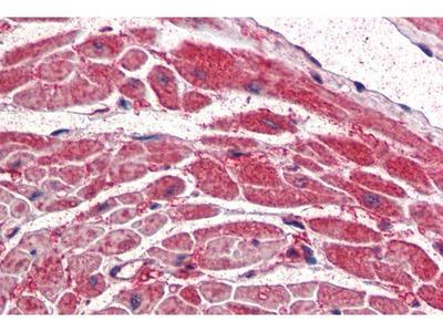 anti-PIK3CA antibody