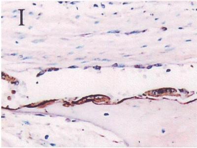 anti-Secreted phosphoprotein 1 (SPP1) (AA 59-74) antibody