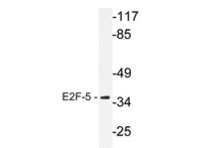 anti E2F5