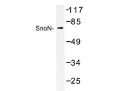 anti SKIL / SnoN