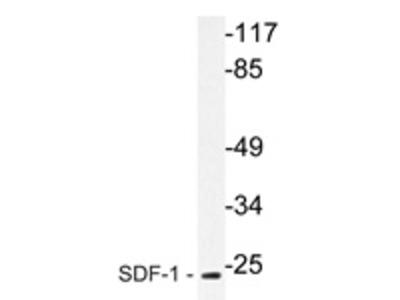 anti CXCL12 / SDF1