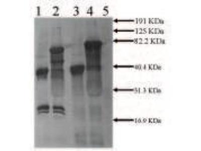 anti-PLAT antibody