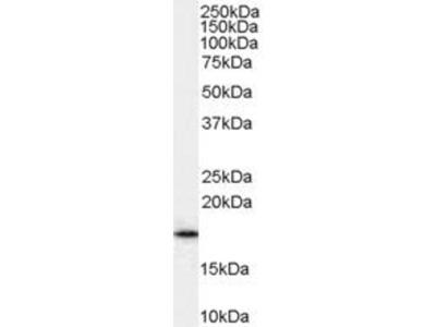 anti-A2MP1 (ADP-ribosylation factor 1) antibody