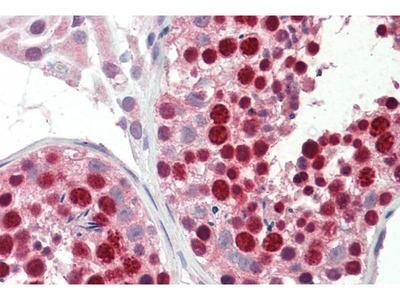 anti-ABCA9 antibody