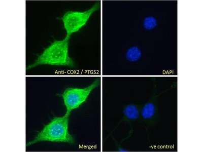 anti-PTGS2 Antibody