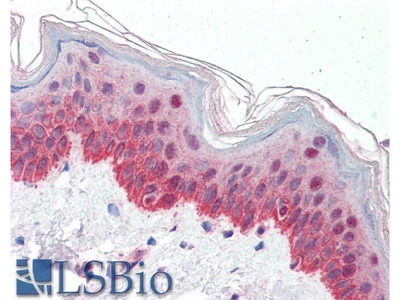 anti-P4HA1 antibody