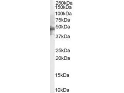 anti-HTR1B (5-HT1B) antibody
