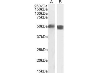 anti-TBC1D10C Antibody