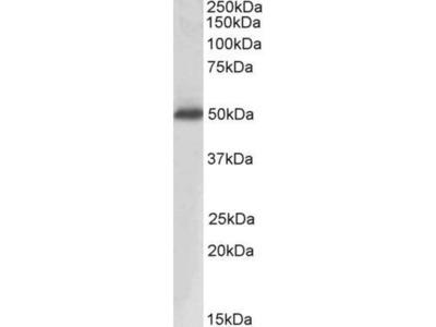 anti-prostatic acid phosphatase (ASAP2) antibody