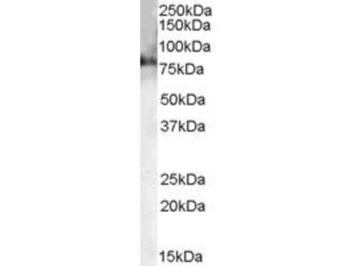 anti-Choline Acetyltransferase Antibody