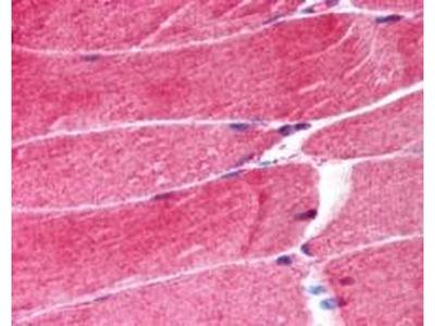 anti-TRIM63 antibody