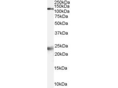 anti-GRIN1 antibody