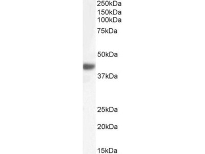 anti-FBXO32 antibody