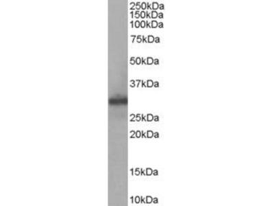anti-FHL1 (FHL1C) antibody