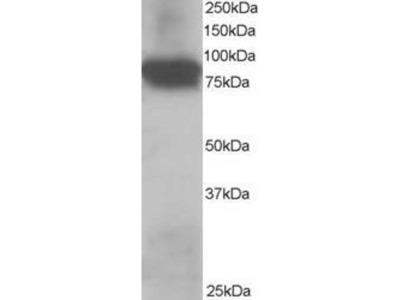 anti-Junction Plakoglobin A (JUPA) (C-Term) antibody