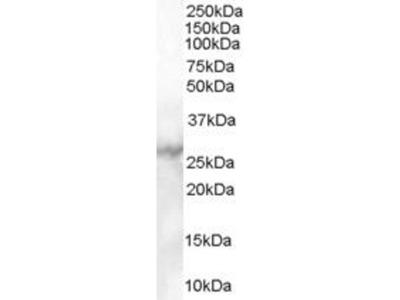 anti-MBL2 antibody