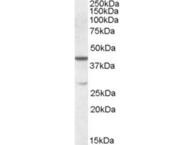 anti-CBX8 (cbx8a) antibody