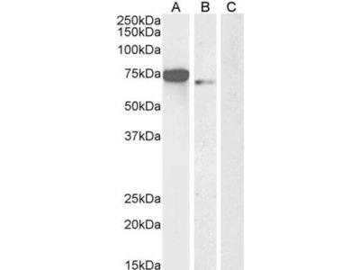 anti-FOXC1 (foxc1-b) antibody