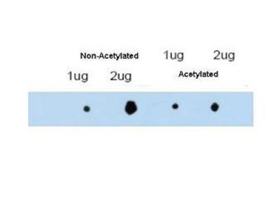 anti-TRIM29 (ATM) antibody