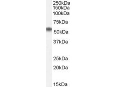 anti-SCN1A (NACC1) antibody