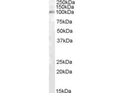 anti-PAM antibody