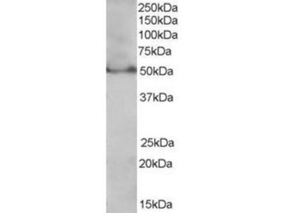 anti-PPARD Antibody