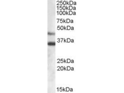 anti-ARSB antibody