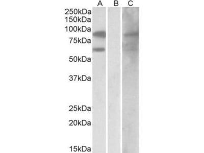 anti-RACGAP1 antibody