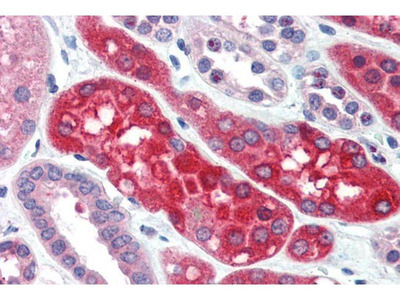 anti-Ezrin (ezrb) antibody