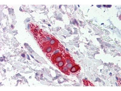 anti-FEZ1 antibody