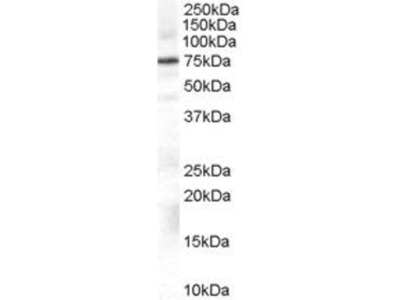 anti-Adrenergic, Beta, Receptor Kinase 1 (ADRB1) (Internal Region) antibody