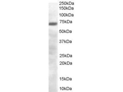 anti-PRDM4 antibody