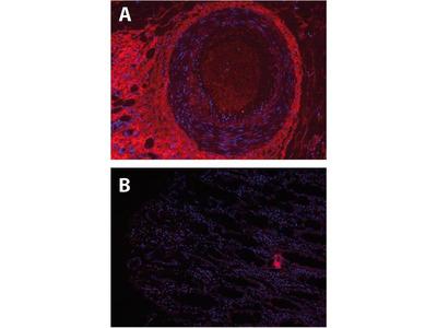 anti-S100 Calcium Binding Protein A8 (S100A8) antibody