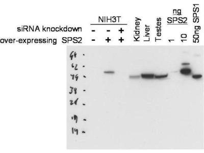 anti-SEPHS2 antibody