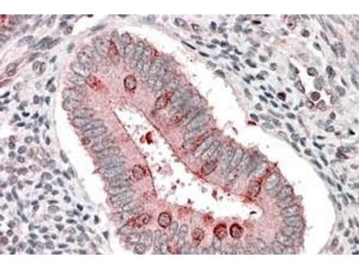 anti-TSC1 antibody
