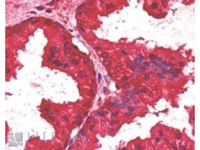 anti-CAMP Responsive Element Binding Protein 3-Like 4 (CREB3L4) (C-Term) antibody