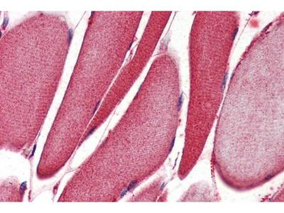 anti-ALOX15 (ALOX12) antibody