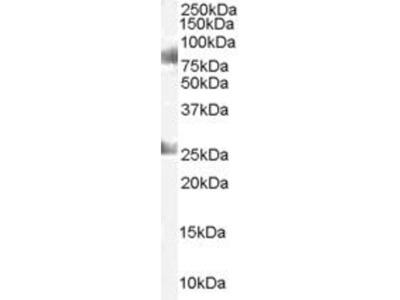 anti-CDYL Antibody