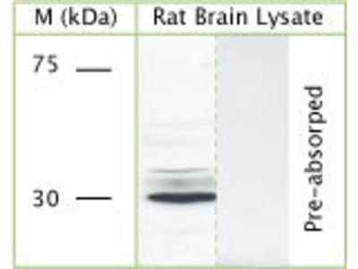 anti-N-Acetylglucosamine-1-Phosphotransferase, gamma Subunit (GNPTG) (Internal Region) antibody