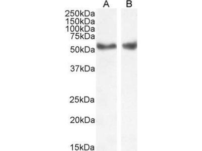 anti-Nuclear Receptor Subfamily 1, Group H, Member 3 (NR1H3) (Internal Region) antibody